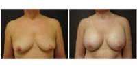 Breast Augmentation 7