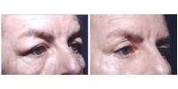 eyelids2