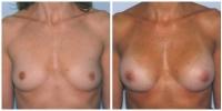Breast Augmentation 2