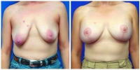 Breast Lift 1