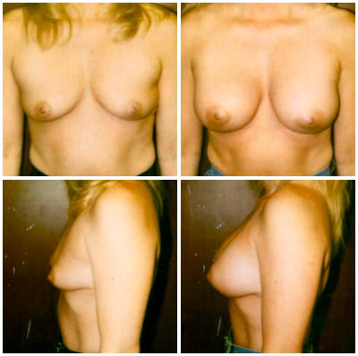 Portland oregon breast augmentation