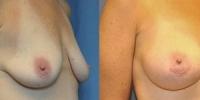 breastaug6