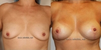breastauglift-1