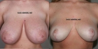breastred-1