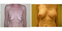 Breast Augmentation 12