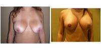 Breast Lift w/Augmentation 4