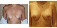 Breast Lift w/Augmentation 2
