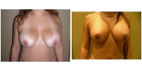 Breast Lift w/Augmentation 4