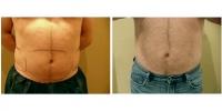 Liposuction 10