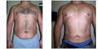 Liposuction 7