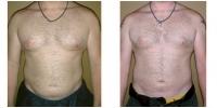 Liposuction 8