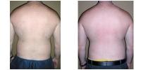 Liposuction 9