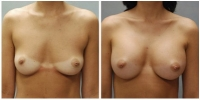 Breast Augmentation 2
