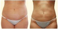 Liposuction 2