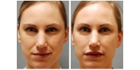 Injectable Fillers 1