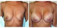 breastaug10
