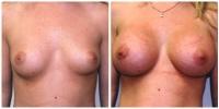breastaug12