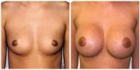 breastaug13