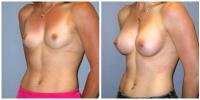 breast_aug2