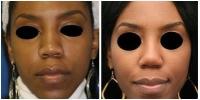 Nose Surgery 1