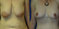 breastlift2a