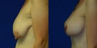 breastlift2b