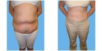 Tummy Tuck 19