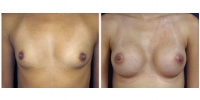 breast_aug2