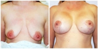 breastlift_aug1