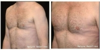 male_chest_implants3