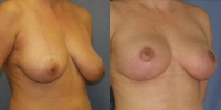 breastlift-2.jpg