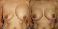 breastrevision-1.jpg