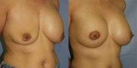 breastrevision-2.jpg