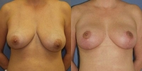 breastlift-1.jpg