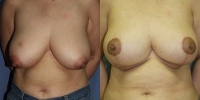 breastreduction-1.jpg