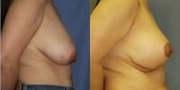 breastreduction-2.jpg