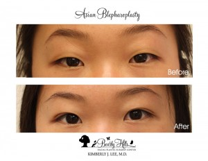 Eyelid Surgery For  Asians