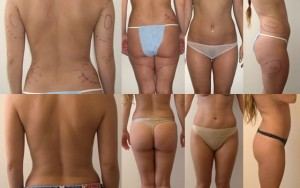 liposuction Santa Monica