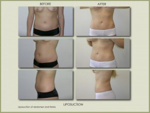 liposuction-patient-before-after