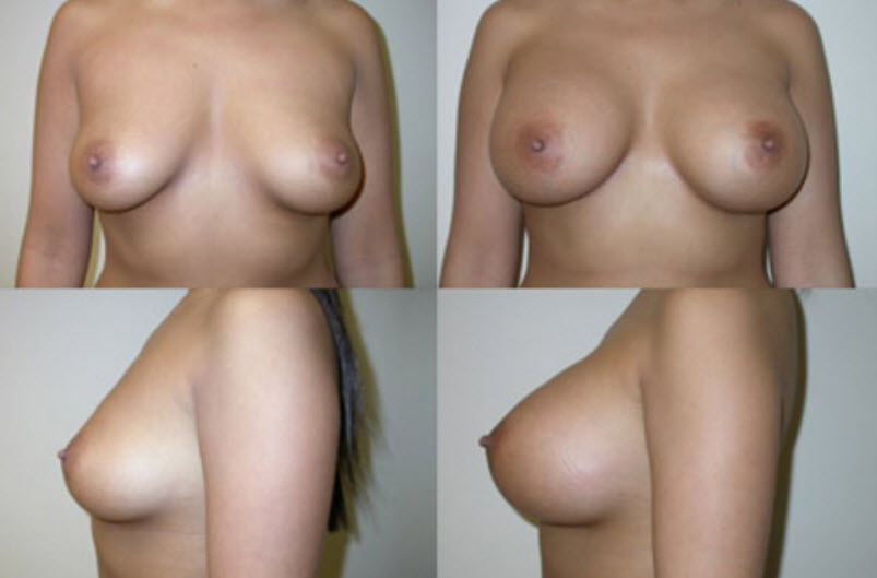 breast augmentation atlanta